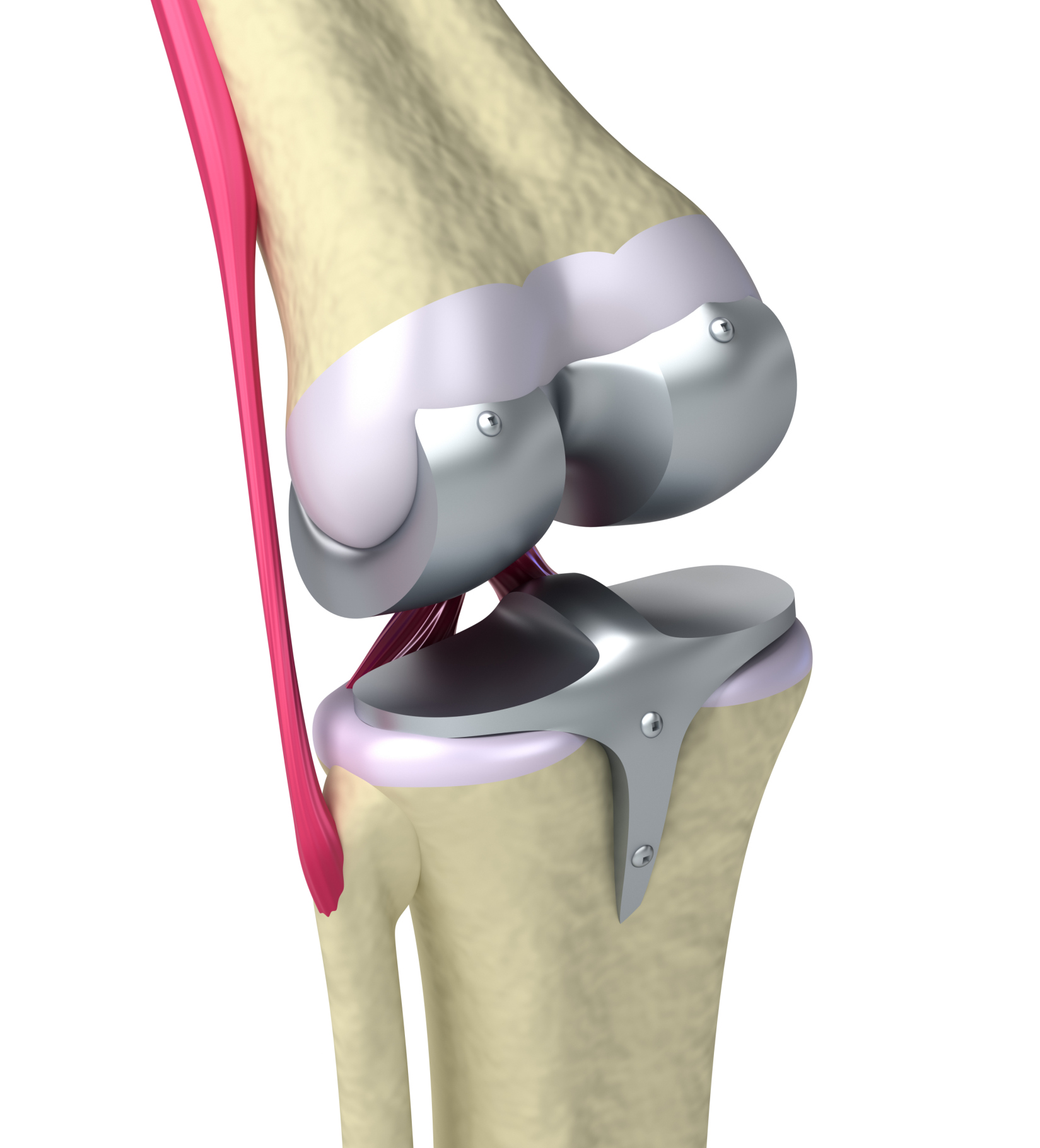 Knee and titanium hinge joint